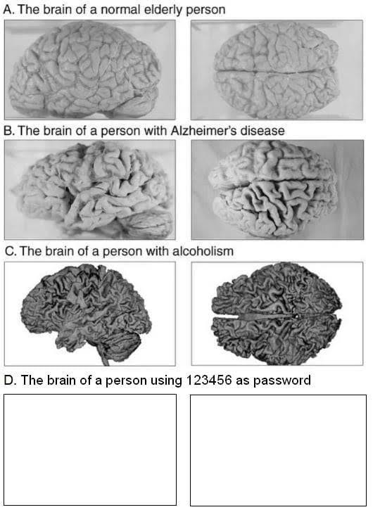 Kinds-of-brain